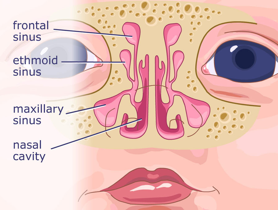 Front view of the sinuses, which are cavities showing inflamation of sinuses as they relate to infant acid reflux.