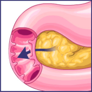 Pancreatic juices containing bicarbonate are secreted into the small intestine. This neutralizes much of the acid leaving the stomach.